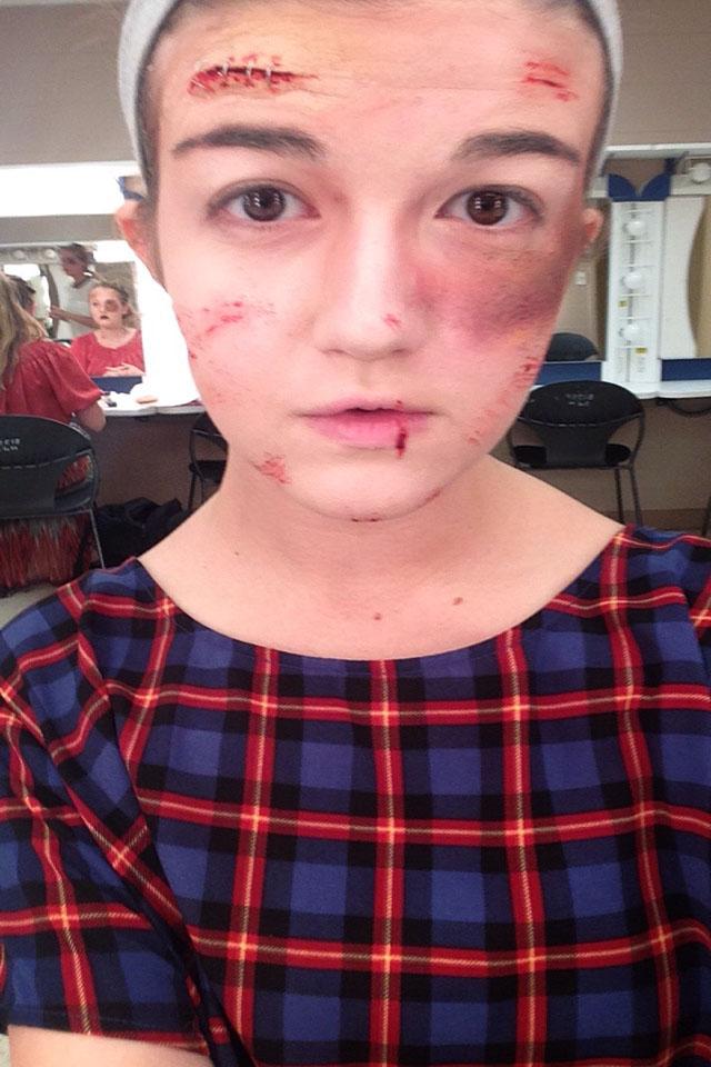 Bruises & Cuts